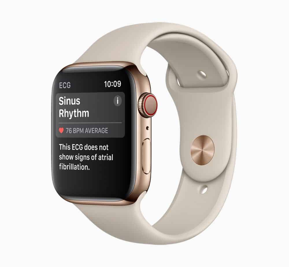 Apple Watch Series 4 Sinus Rhythm screen 12062018